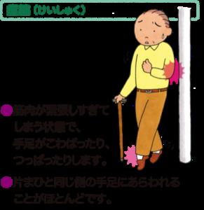 ボツリヌス治療:痙縮