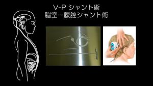 V-P シャント術/脳室−腹腔シャント術