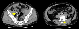 椎脊髄腔から腹腔内にシャント・チューブ