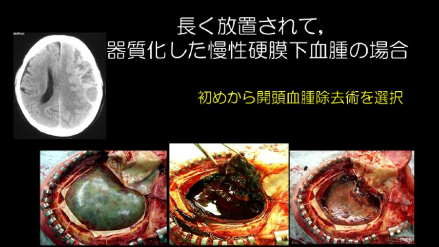 長く放置されて、器質化した慢性硬膜下血腫の場合