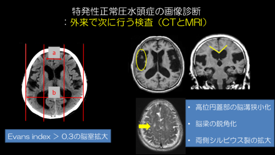 突発性正常圧水頭症の画像診断